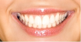 Albany Dentist | Albany dental Bonding/White Fillings |  GA