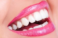 Albany Dentist | Albany dental Teeth Whitening |  GA